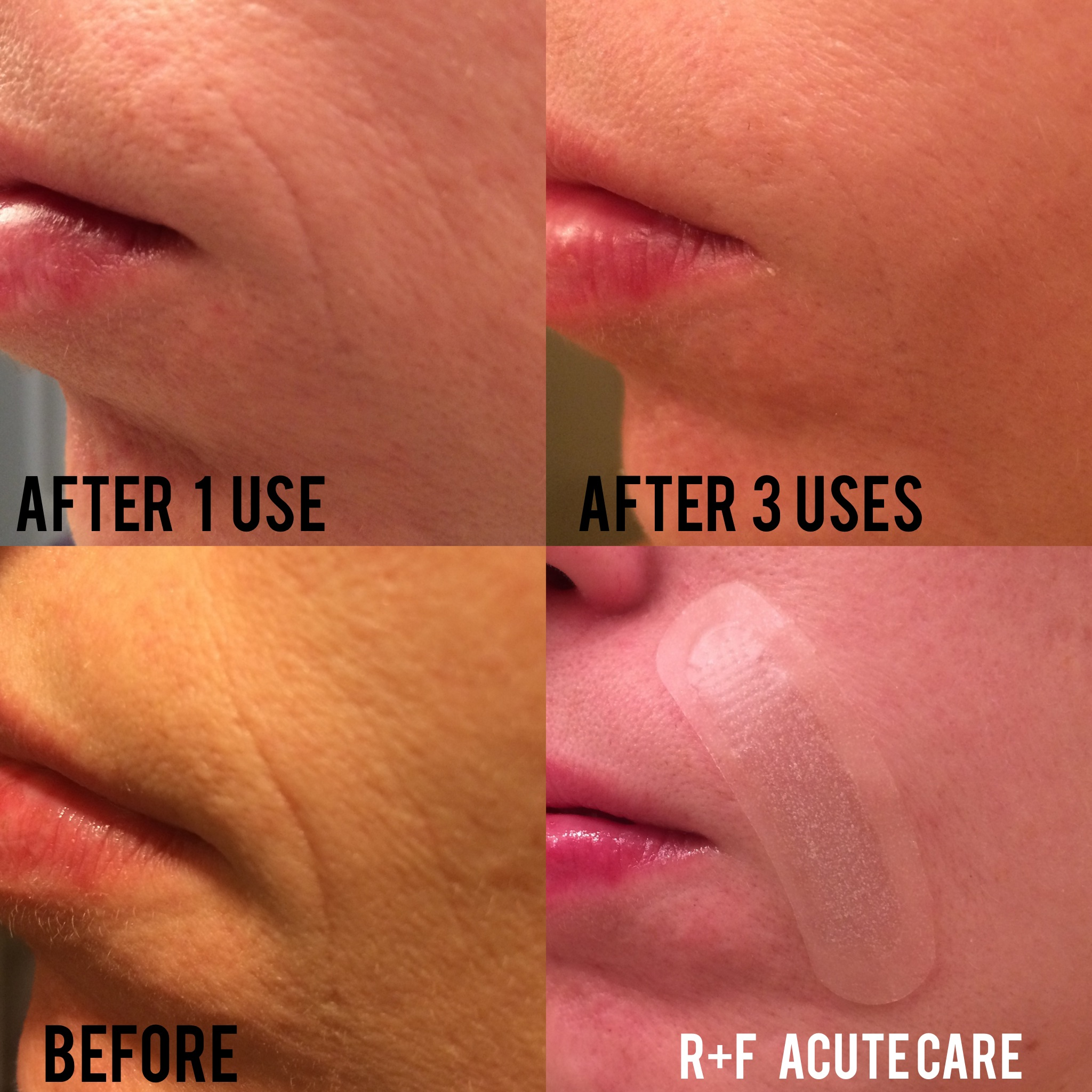My Acute Care Results